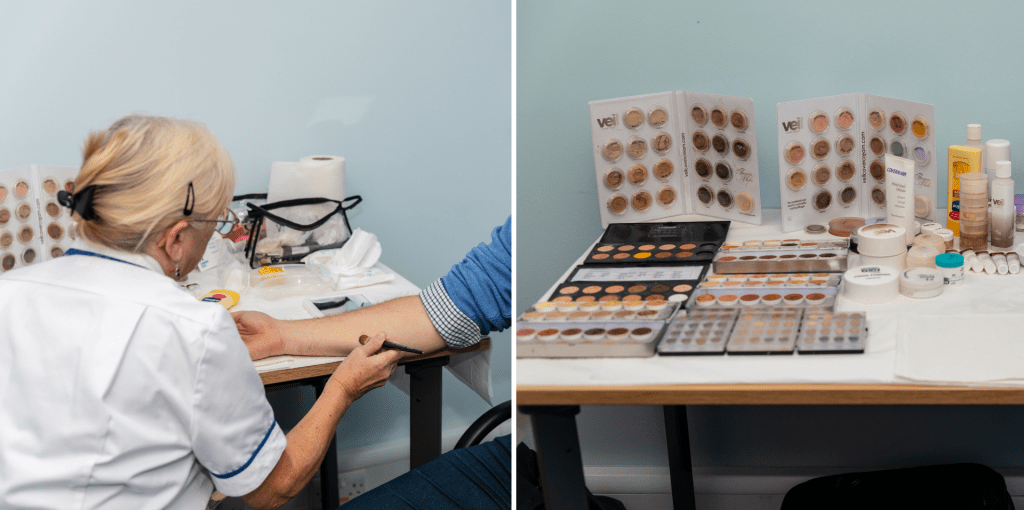 Composite image showing a skin camouflage practitioner with a client, and skin camouflage products laid out on a table