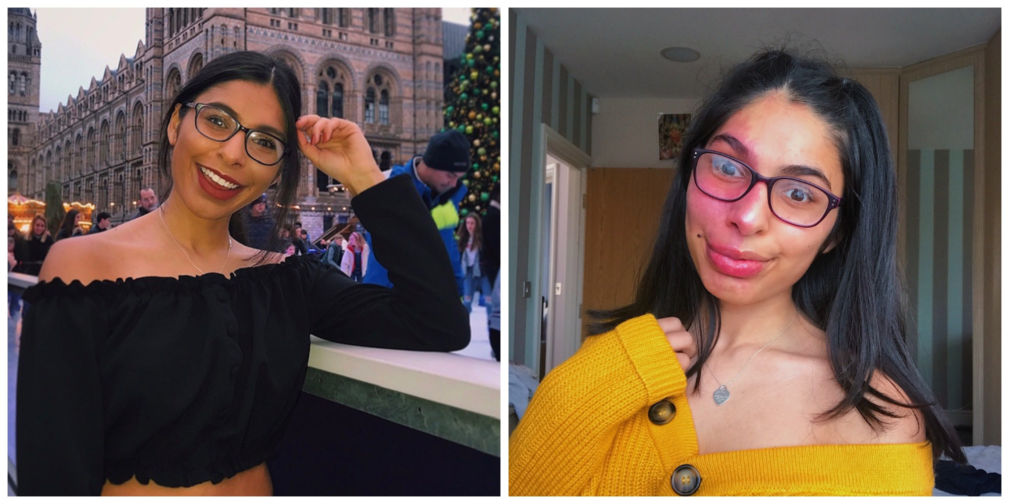 Two images: on the left, a woman in a black top and glasses smiles. She is sitting next to an ice rink. On the left, she wears a yellow cardigan.