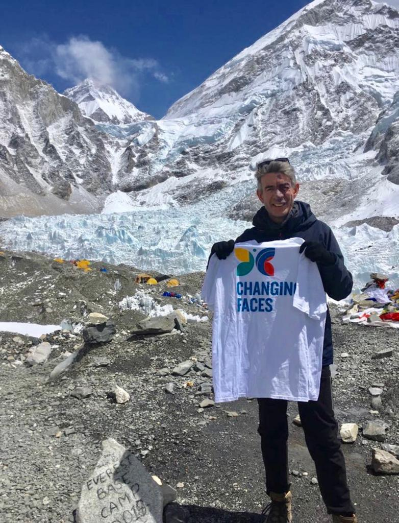 A man with a port wine birthmark holds a Changing Faces t-shirt. He is standing at Everest base camp, snowy mountains behind him.