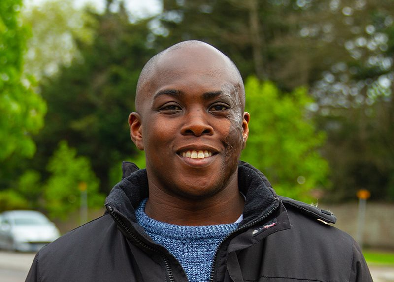 A man with scars from burns on his face smiles at the camera. He is wearing a black jacket with a blue jumper underneath.
