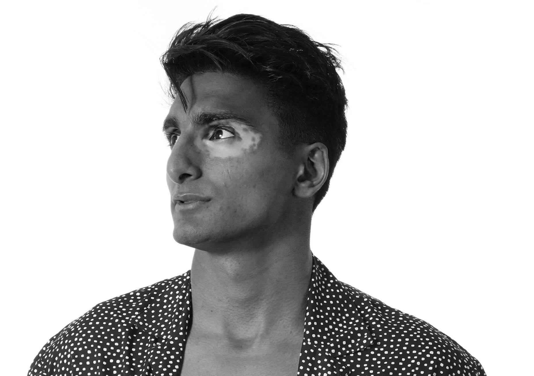 A man who has vitiligo around his eye looks to the left of camera. He is wearing a polka dot shirt and has dark hair.