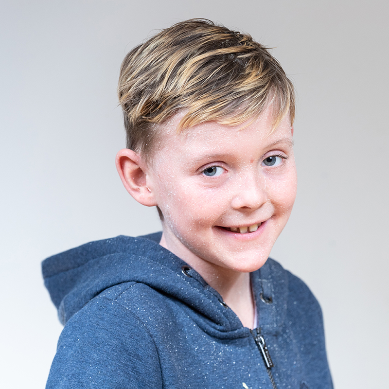 A young boy, who has blonde hair and a skin condition, wears a blue hoodie. He is smiling.