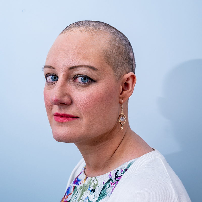 A woman with alopecia wearing a white top looks to the camera, against a blue background.