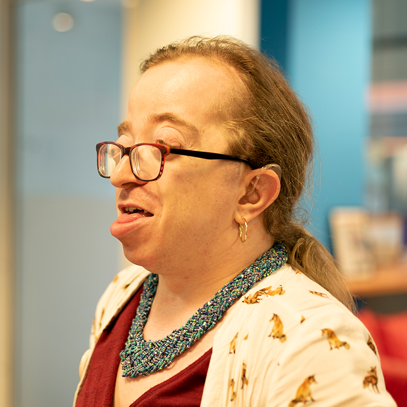 A woman with Crouzon syndrome wearing glasses and a green necklace looks to the left of the camera.