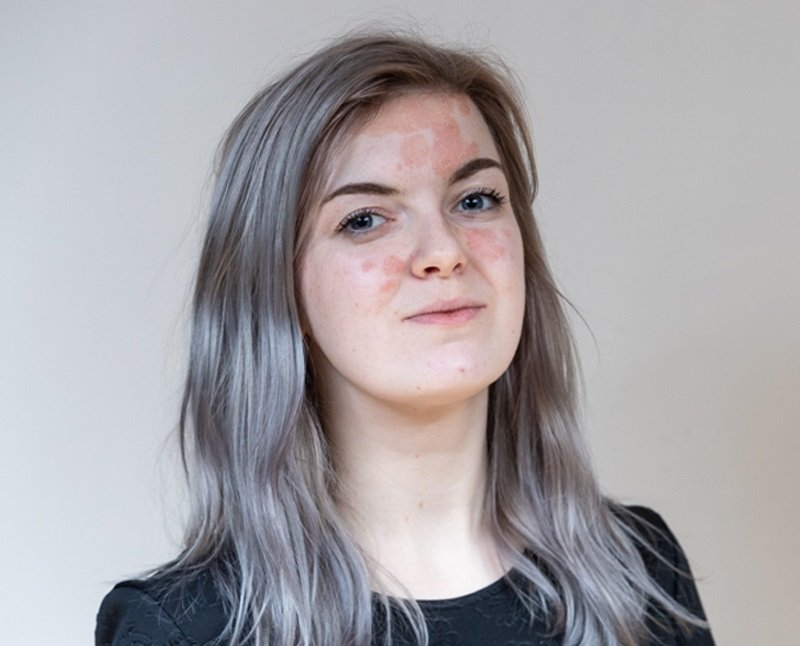 A young woman with psoriasis against a pale background