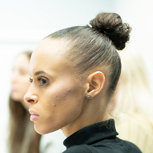 Natalie who has vitiligo wears a black polo neck jumper and stands in profile
