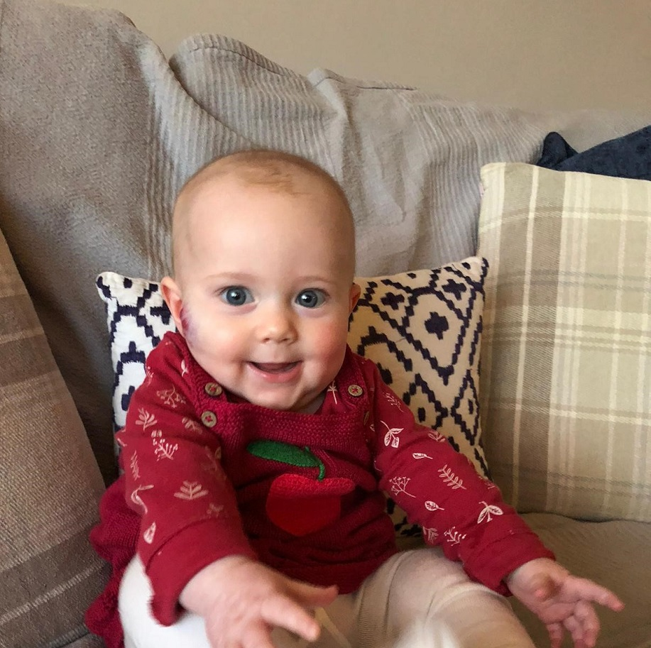 A baby girl with a birthmark on her right cheek sits propped up on a cushion, and is wearing a red top.