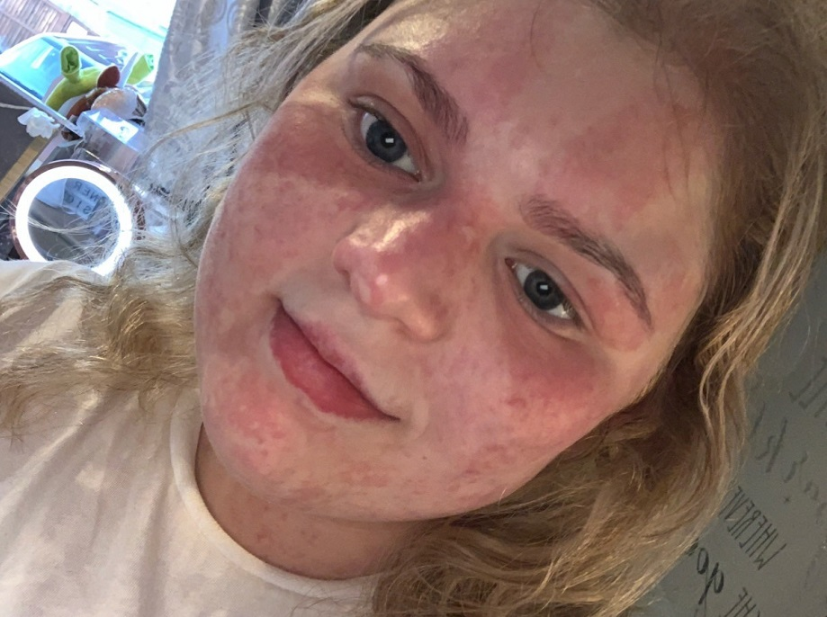 A teenage girl with a birthmark covering her face takes a selfie without makeup.