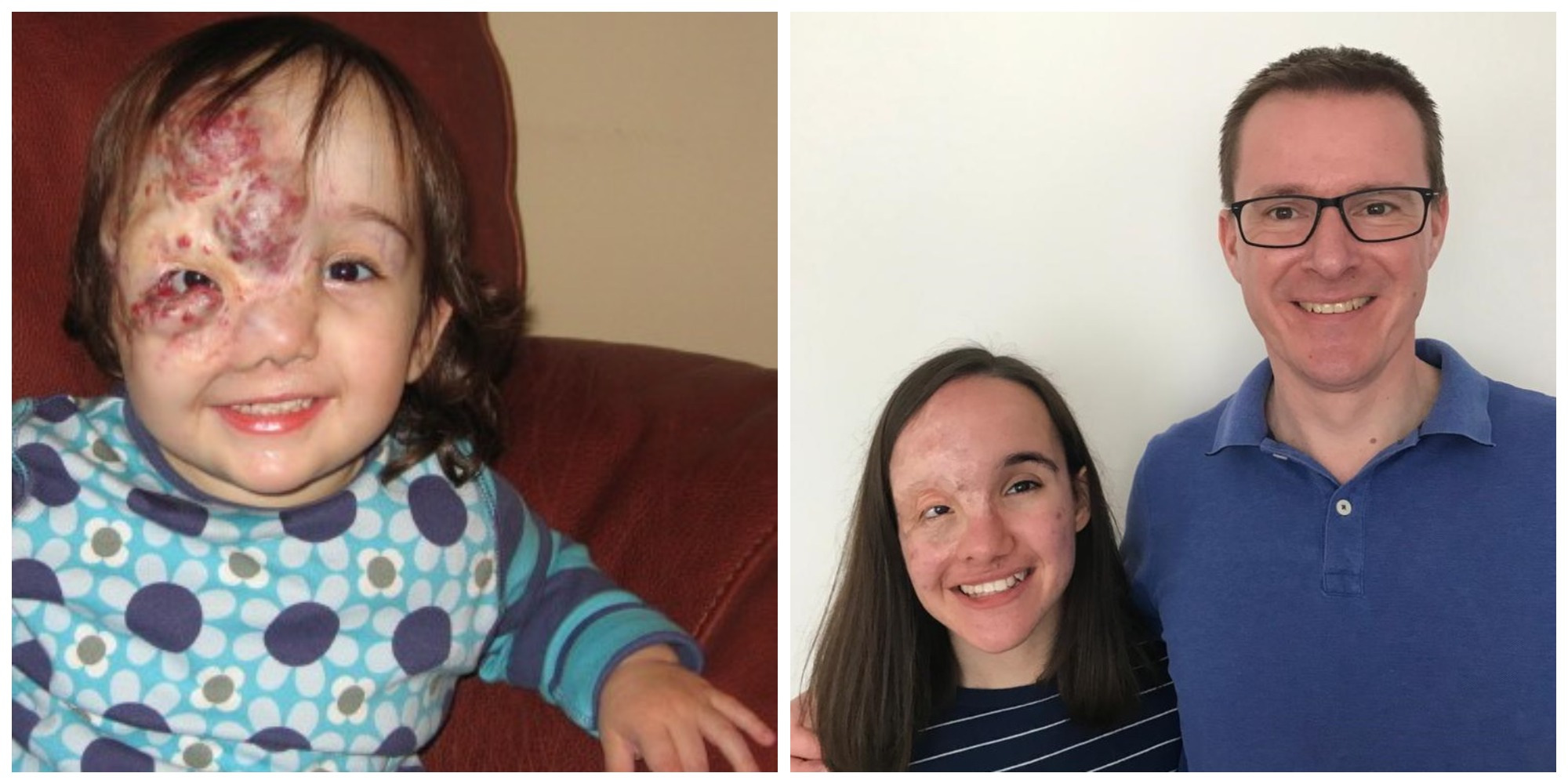 Two photos: on the left is a baby girl with a birthmark; on the right the girl is a smiling teenager, standing next to her dad, dressed in blue.