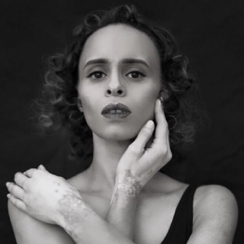 A black and white photo of Natalie who has vitiligo - Natalie poses with her hands to her face