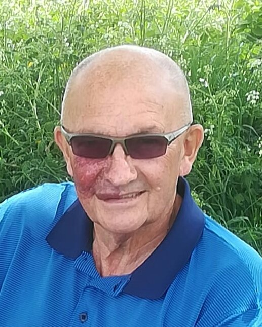 An older man with a port wine stain on his right cheek, outdoors with sunglasses