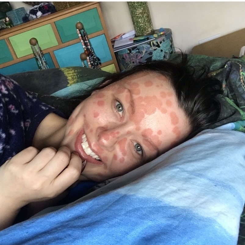 A young woman with psoriasis lies on a blue pillow, smiling at the camera.
