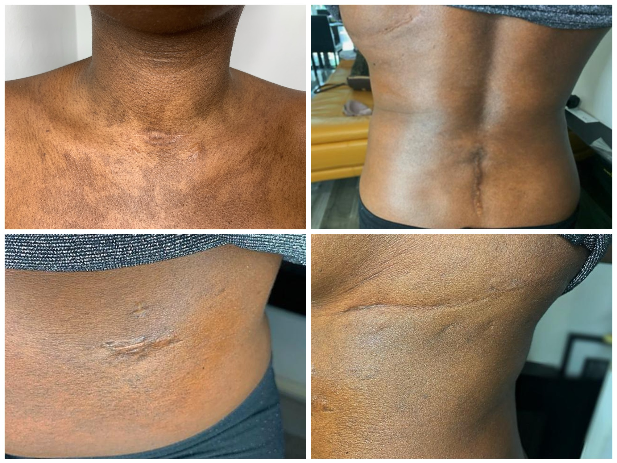Four images which show a woman's scars on her neck and back.