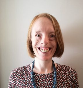A woman with amniotic band syndrome wearing a patterned dress smiles at the camera.