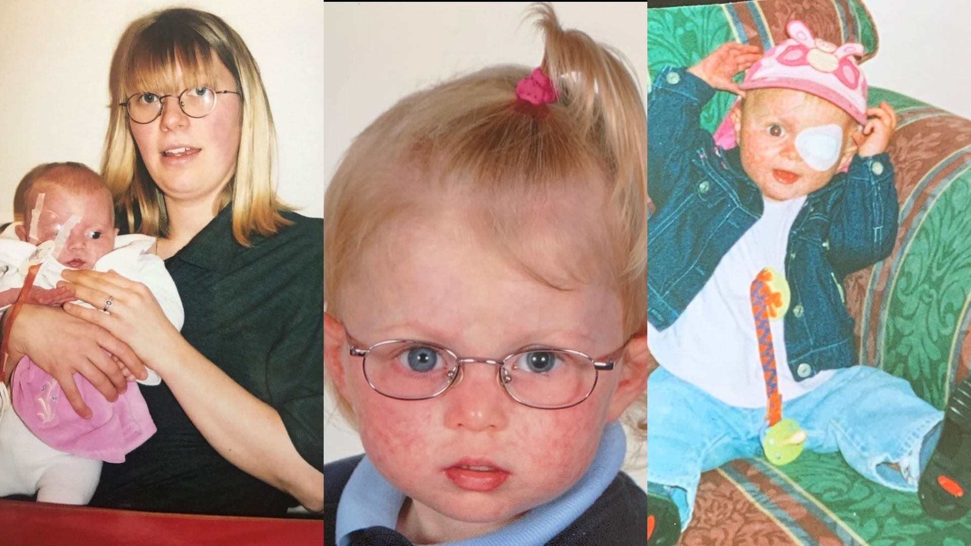 On left: a woman, mid-late 20s, with shoulder length blond hair and glasses is holding a baby in a white romper who has a patch over her right eye. In the centre: a school portrait of a young girl, 5-6 years old, wearing a blue polo, navy jumper and glasses. On the right: a toddler, sitting on a green and brown patterned sofa. She has an eye patch and short blond hair and is wearing a white t-shirt, light blue jeans and a navy jacket.