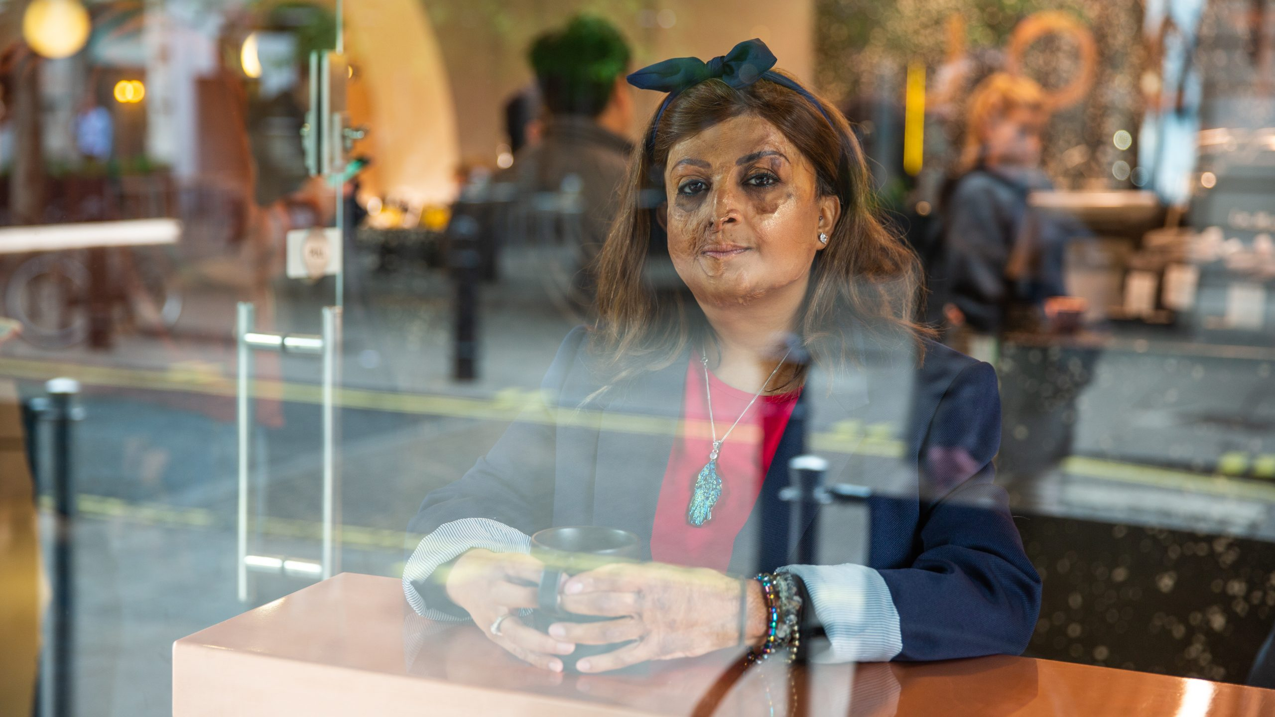 A woman with facial scarring sits in a coffee shop window, holding a glass