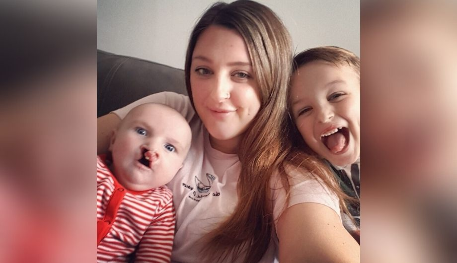 A white woman in her 30s, long brown hair with her two children: Jude, a baby with a complete bilateral cleft lip and palate; Theo, a six year old boy, with a unilateral cleft lip and alveolar notch