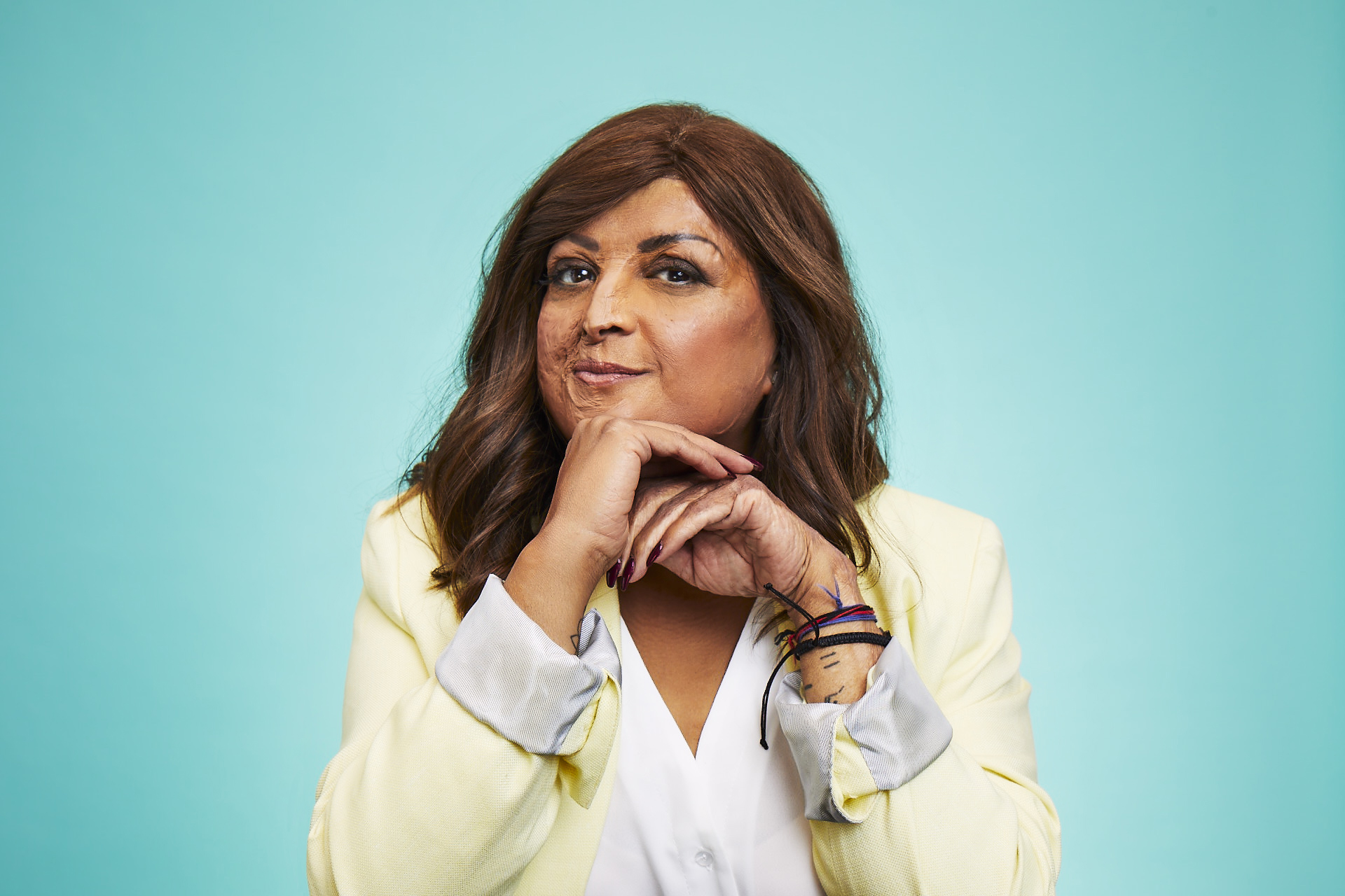 Burns survivor Tulsi sits against a blue background. She has her hands to her face, is smiling, and is wearing a yellow jacket and white shirt.