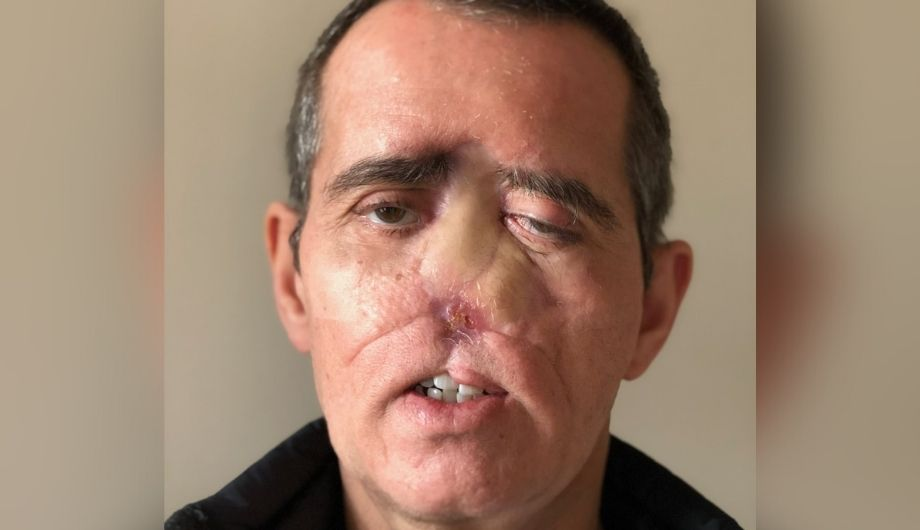 Mark, a man in his late 50s, with short grey hair. His nose was removed during surgery. He's wearing a black jacket.