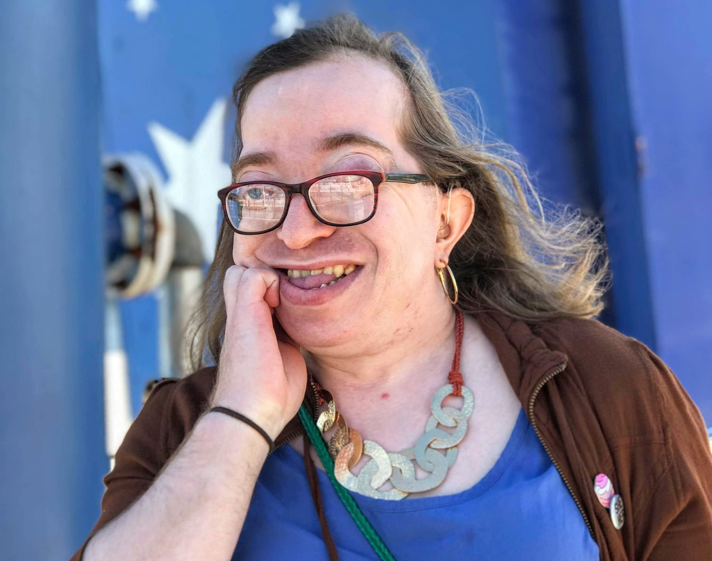 A woman with Crouzon syndrome wearing glasses and smiling at the camera