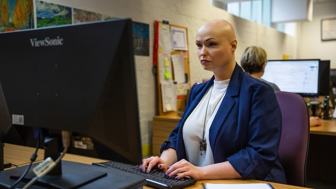 A woman with alopecia, wearing a blue jacket with a white top, works at a desk in front of a computer.
