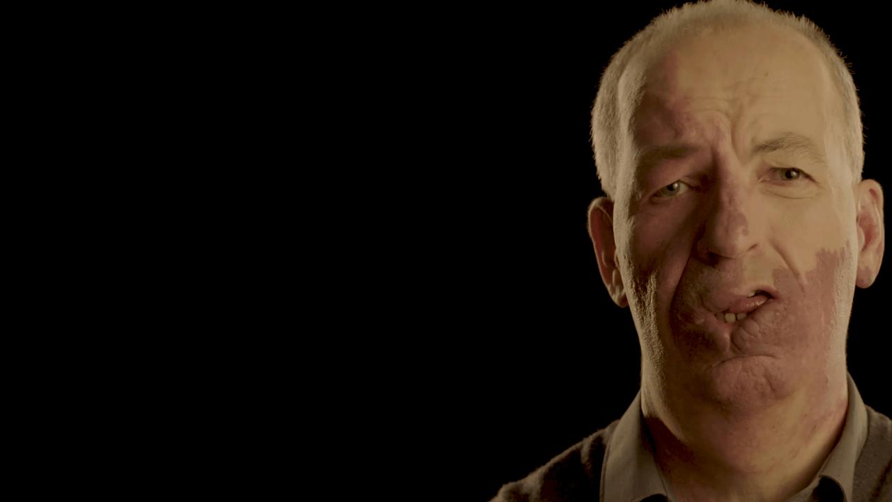 A man with a facial birthmark against a black background