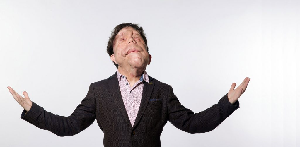 A man with a visible difference in a suit with his head raised to the sky and his arms out at his sides