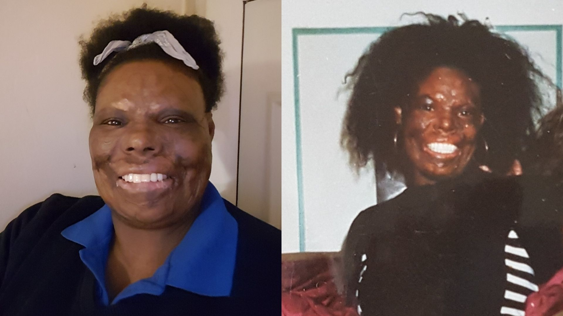 Left: Christine, a woman in her 40s/50s, wearing a black jumper and blue shirt. She's smiling at the camera and her hair is pulled up in a scrunchie. Right: Christine in her 30s, she is wearing a black top with a black and white lined dress over it. She's smiling at the camera.