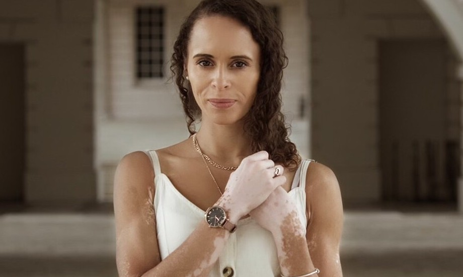 Natalie, a woman with vitiligo. She has shoulder length brown hair and is wearing a white strappy top and staring towards the camera, with her hands near her collar bone.