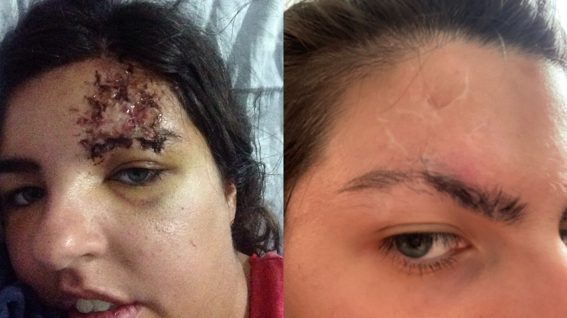 Left: a close-up of Sophie's forehead after the accident. An open wound is visible. Right: Sophie's forehead a few weeks later. It has healed and there are scars on her forehead and through her right eyebrow.