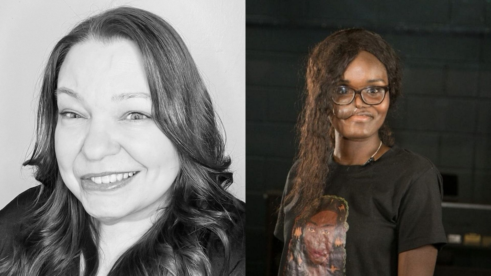 Left: a black and white image of Miranda Walker, a woman, 40s, who has some facial paralysis. Right: Crystal, a woman in her 20s, with a skin flap on her cheek. She's got long hair and glasses and is wearing a black t-shirt.