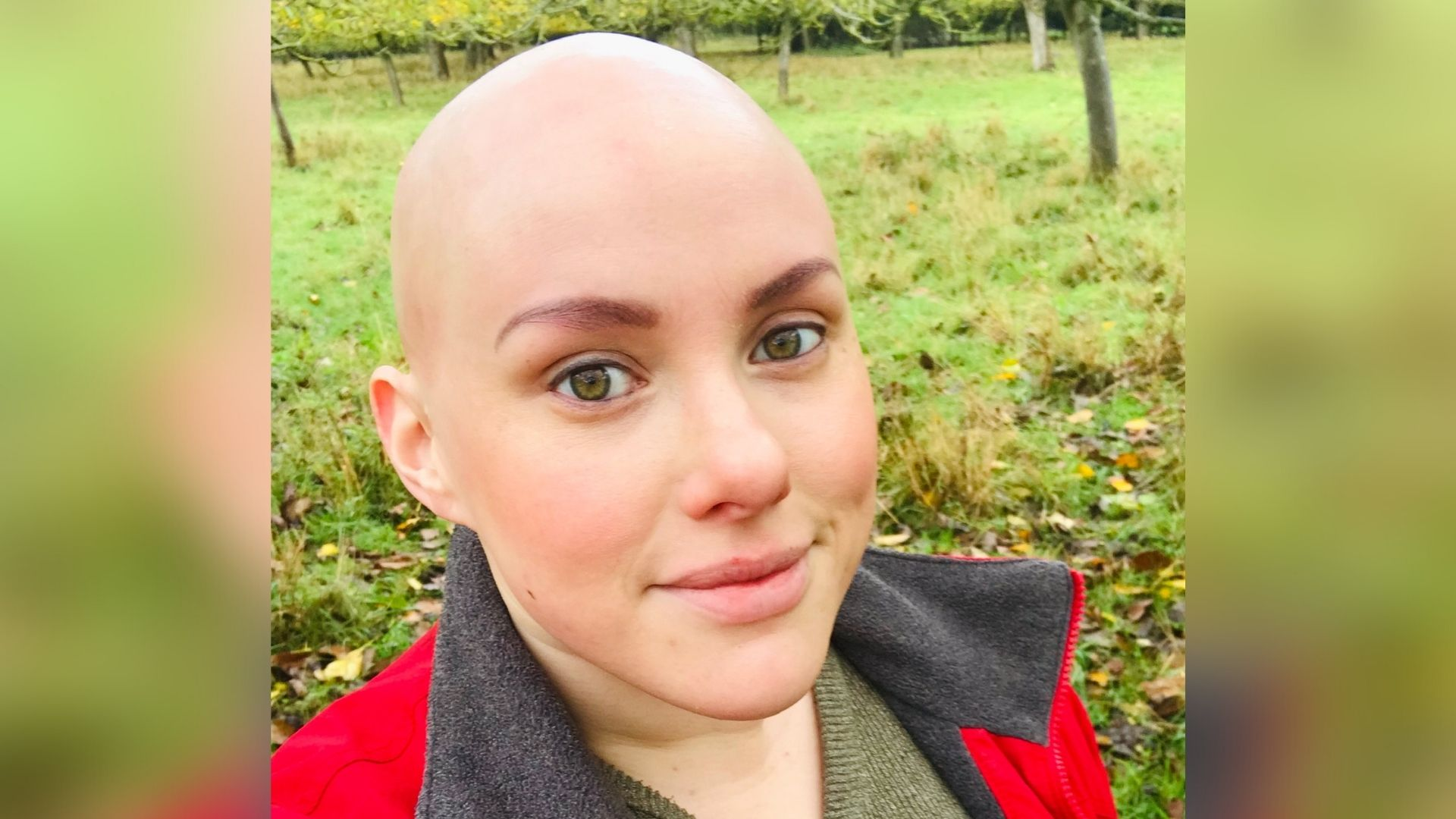 Laura, a woman with alopecia. She has green eyes and is wearing a red fleece with a grey lining and looking at the camera. There's a field behind her.