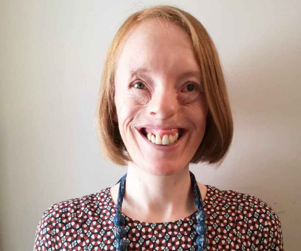 A woman with amniotic band syndrome wearing a chunky blue necklace and a patterned dress smiles at the camera.